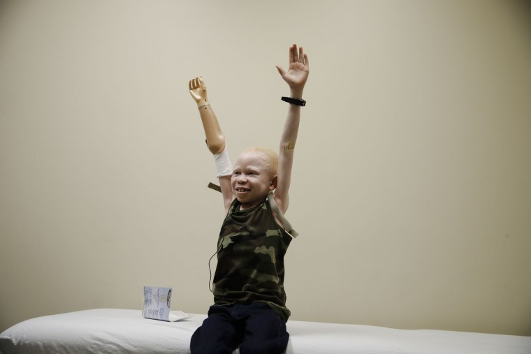 Baraka Cosmas raises his arms during a prosthetic limb fitting at Shriners Hospital for Children in Philadelphia, Tuesday, May 30, 2017. Cosmas, an albino from Tanzania was on a return trip to the United States to be refitted for a new prosthetic. Albinos in traditional communities in Tanzania are hunted for their limbs which attackers believe hold magical power. (AP Photo/Matt Rourke)