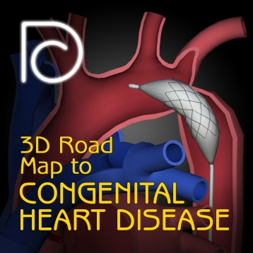 3D Road Map to Congenital Heart Disease