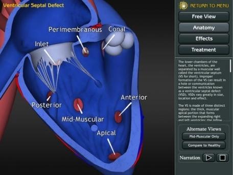 3D Road Map to Congenital Heart Disease