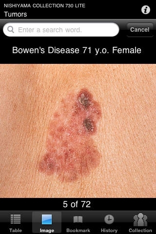 730 Top Picks from NISHIYAMA COLLECTION-Dermatosis Image Atlas for iPhoneOS-LITE version