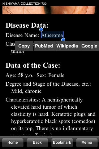 730 Top Picks from NISHIYAMA COLLECTION-Dermatosis Image Atlas for iPhoneOS