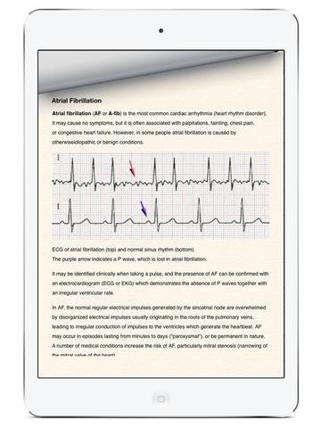 AFib Lib - Atrial Fibrillation Case Database