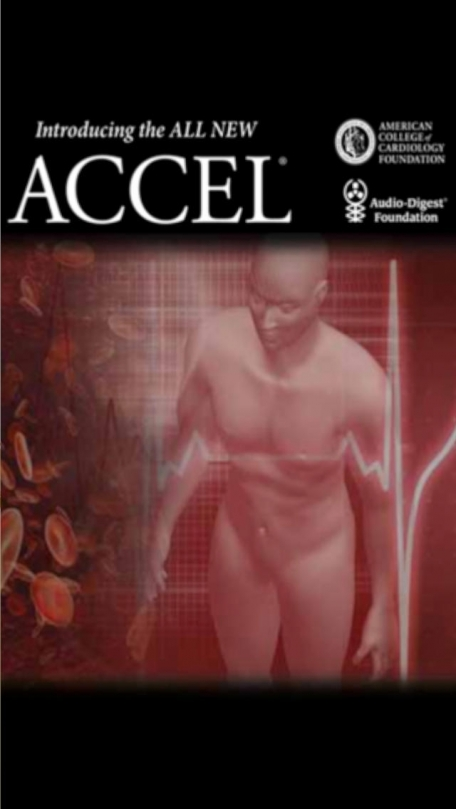 ACCEL Audio