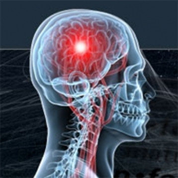 Brain Training - Improving Your Memory