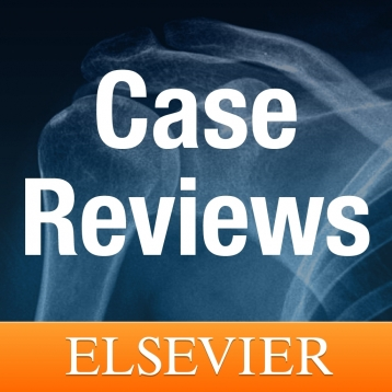 Case Reviews for iPhone and iPad