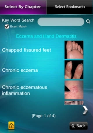 Clinical Images, Captions and Flash Cards from Habif's Clinical Dermatology 5th Edition