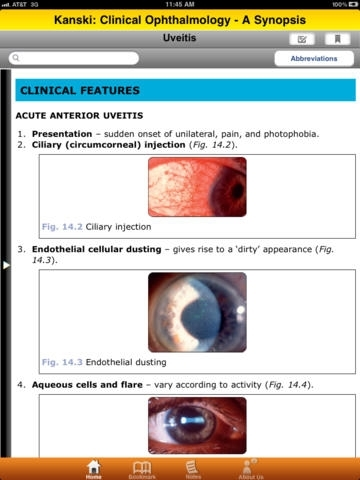 Clinical Ophthalmology: A Synopsis