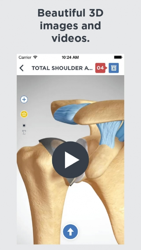 Shoulder Decide - Point of Care Patient Education for Healthcare Professionals by Orca Health
