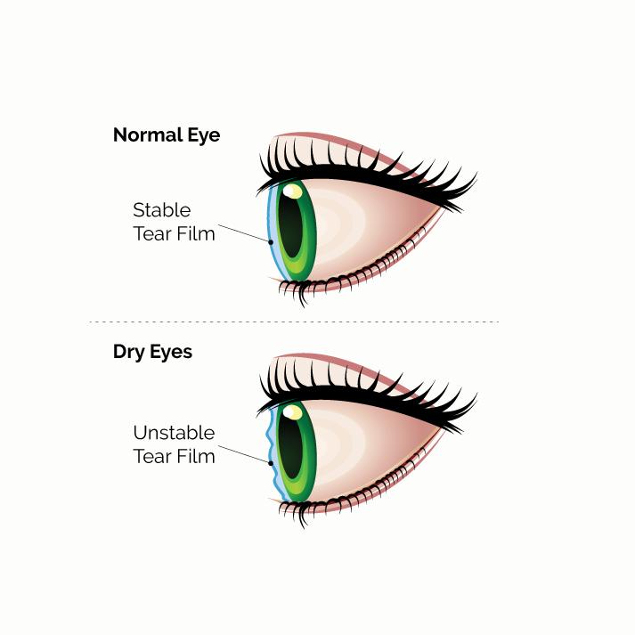 dry eye syndrome diagram