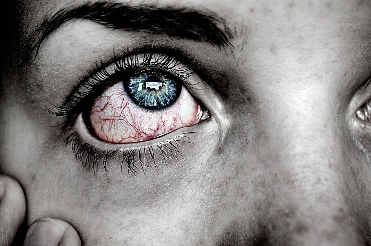Edmonton Eye doctor treat patient with an eye infection near Sherwood Park, Alberta