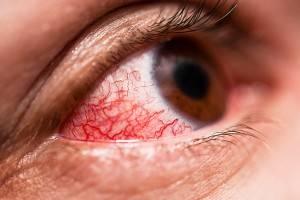red eye - optometrist Indiana