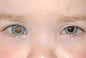 retinoblastoma4