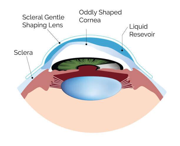 optometrist, Type of Scleral Lenses