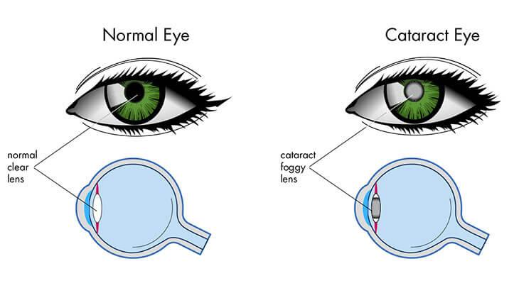 cataract eye crossection copy