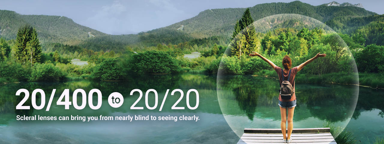 Ad for scleral contact lenses