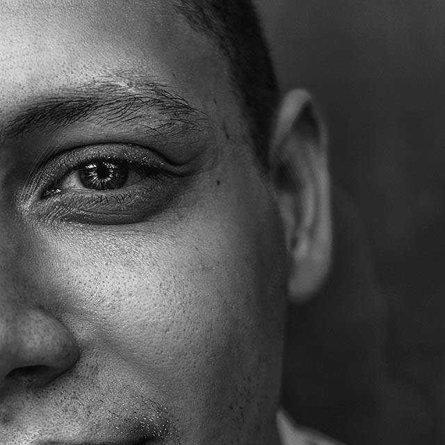 face of person with dry eye needs Olathe optometrist