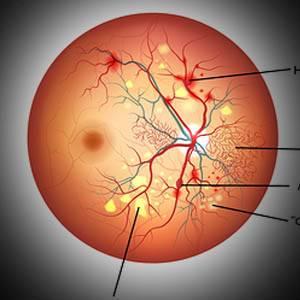 Eye Gallery Diabetes 1 1.jpg