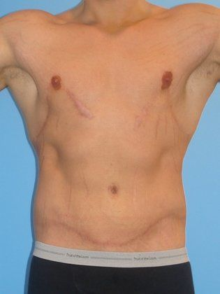 gynecomastia surgery before after. After
