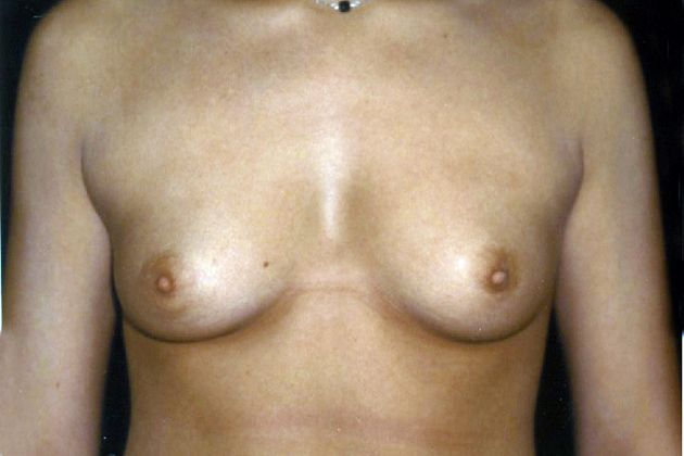 womens with extra large tits and areolas photo galery