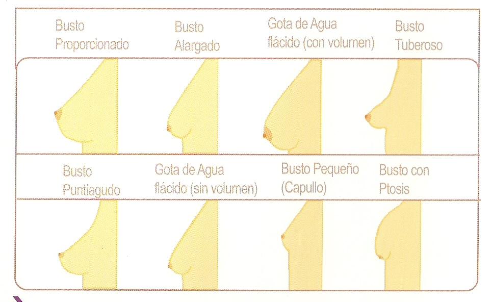 El aceite de hígado de pez en las cápsulas para el aumento del pecho