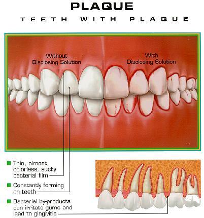 Milwaukee, WI Dental Plaque