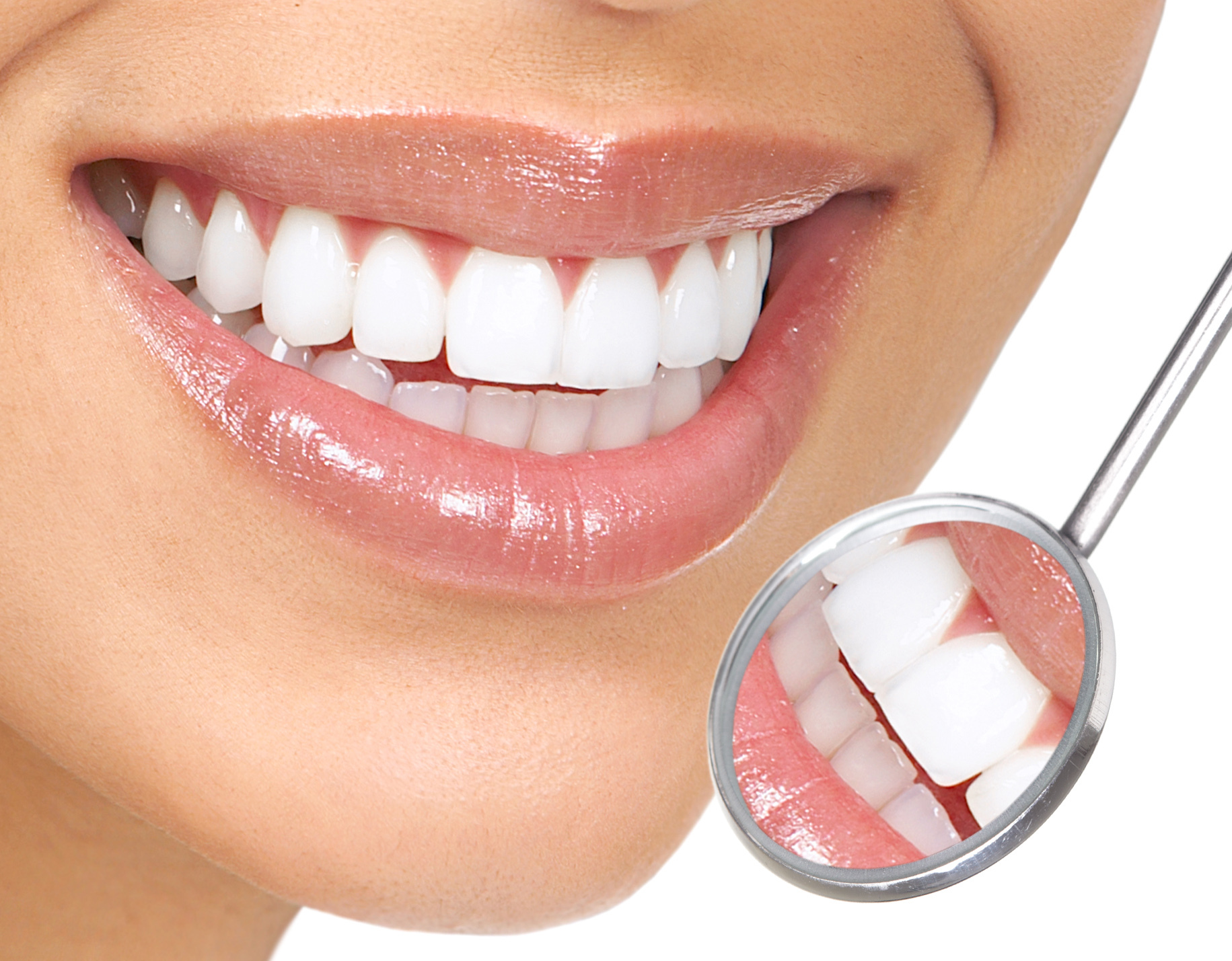 Milwaukee Teeth Whitening Dental
