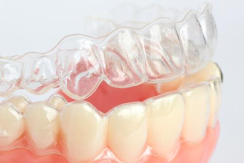 Philadelphia Teeth Straightening
