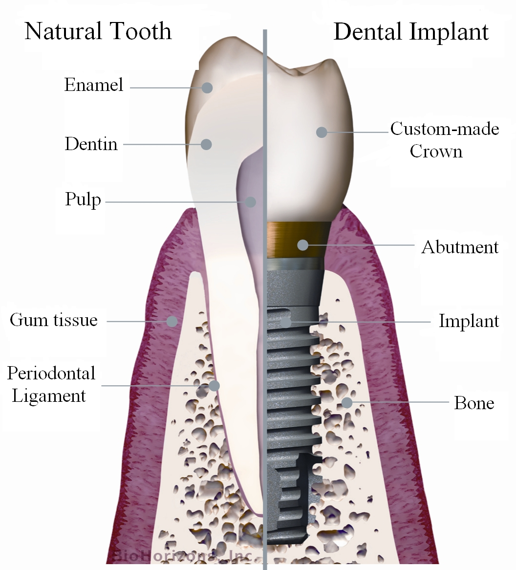 Implants- Part 1- Why are implants important?