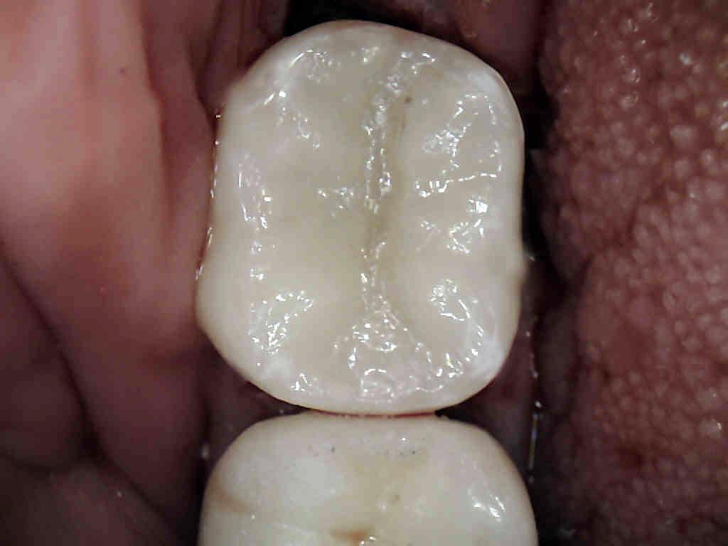 Milwaukee Dental Crowns