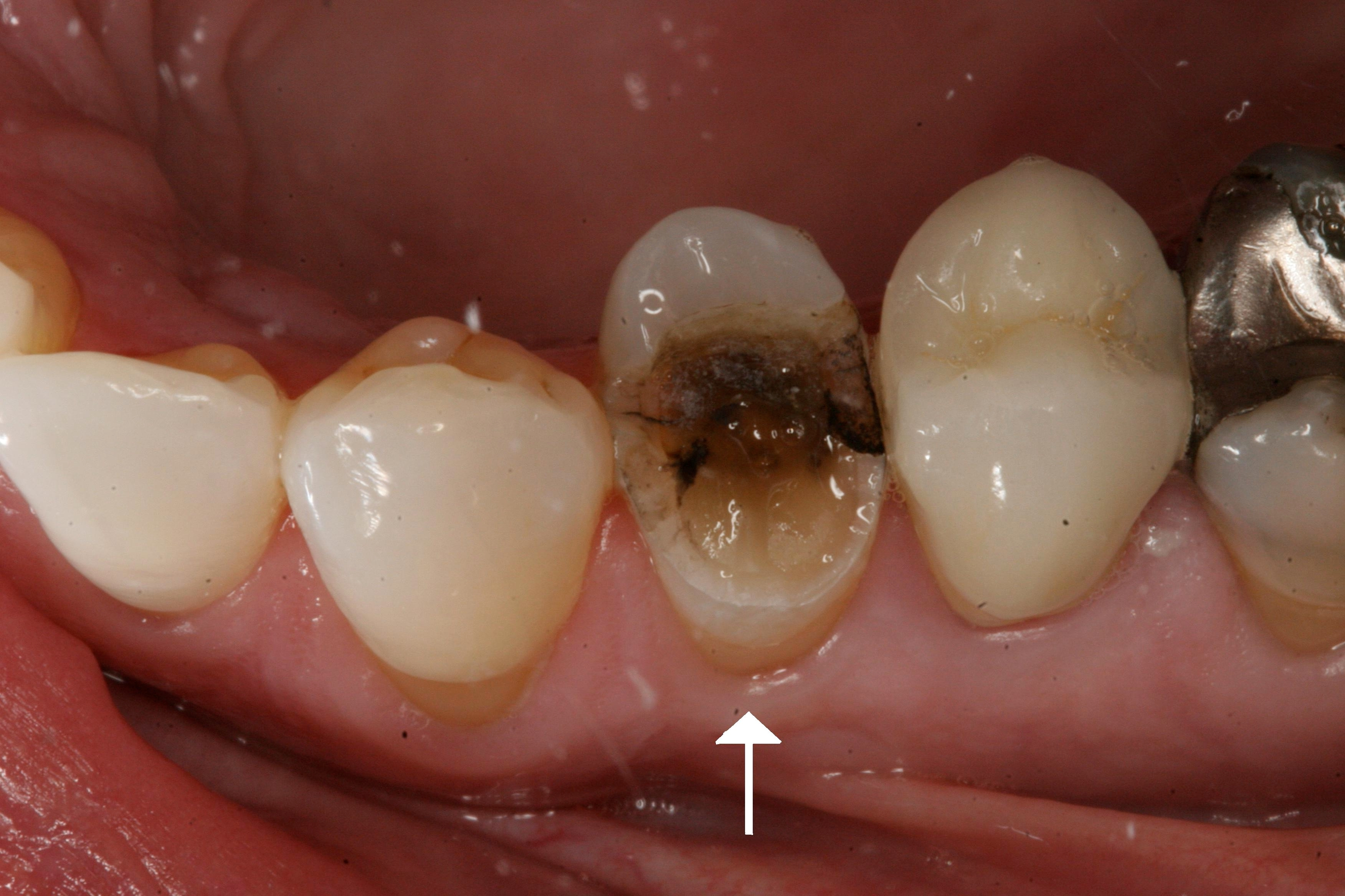 how to fix badly chipped tooth