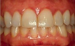 Gum Disease, Gingivitis