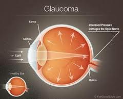 Cleveland Glaucoma Testing