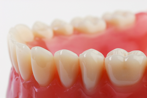 Bells Dental Inlays Onlays
