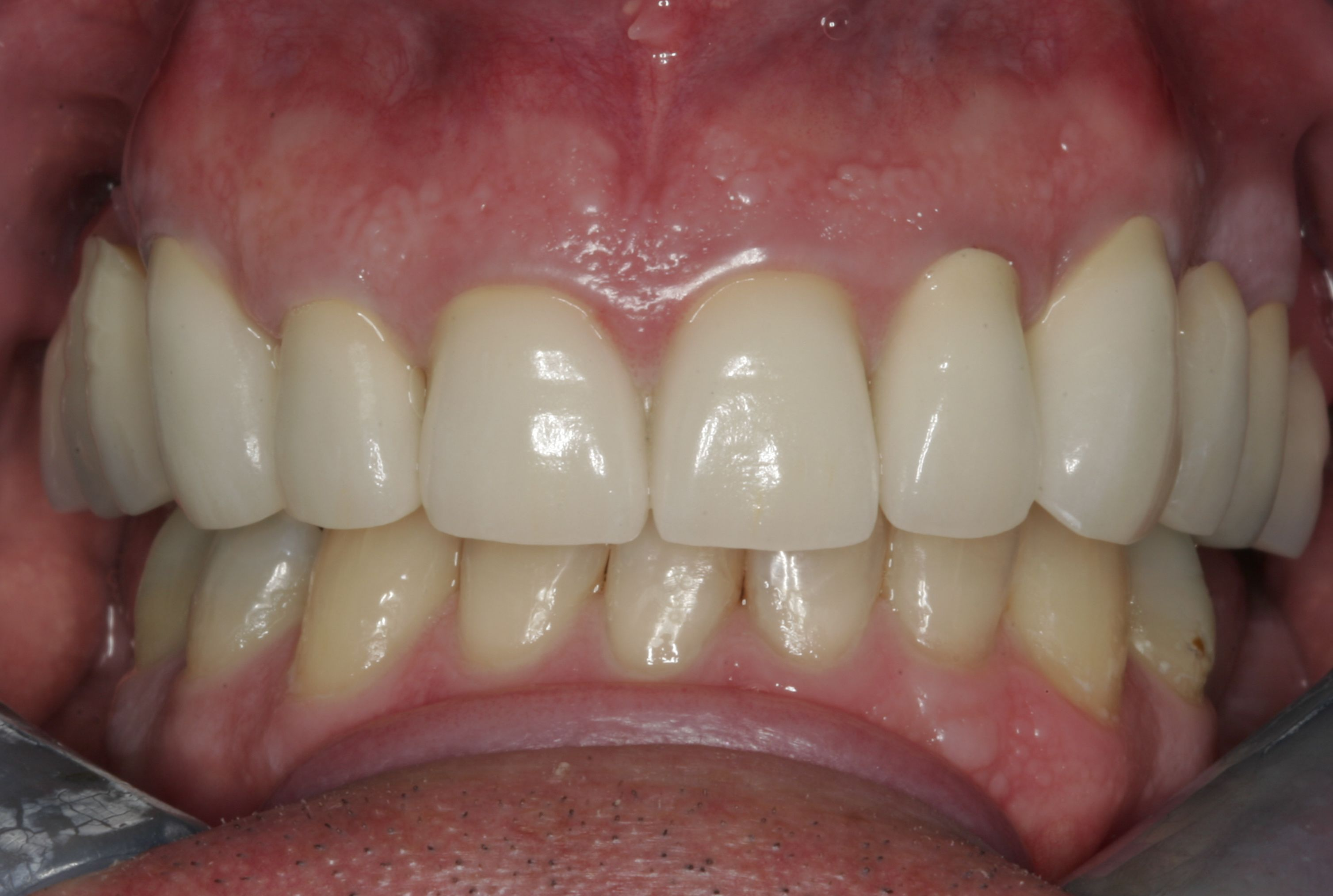 What Color Are Gums Healthy - Bing images