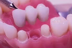 Corpus Christi Dental Bridges