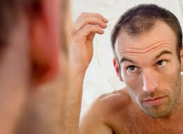 New York Hair Transplant Results
