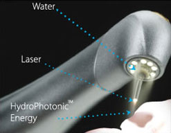 """Waterlase MDâ""""¢ technology being used on a tooth"""