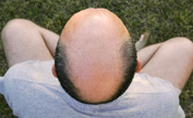 The Progression and Stages of Male Hair Loss