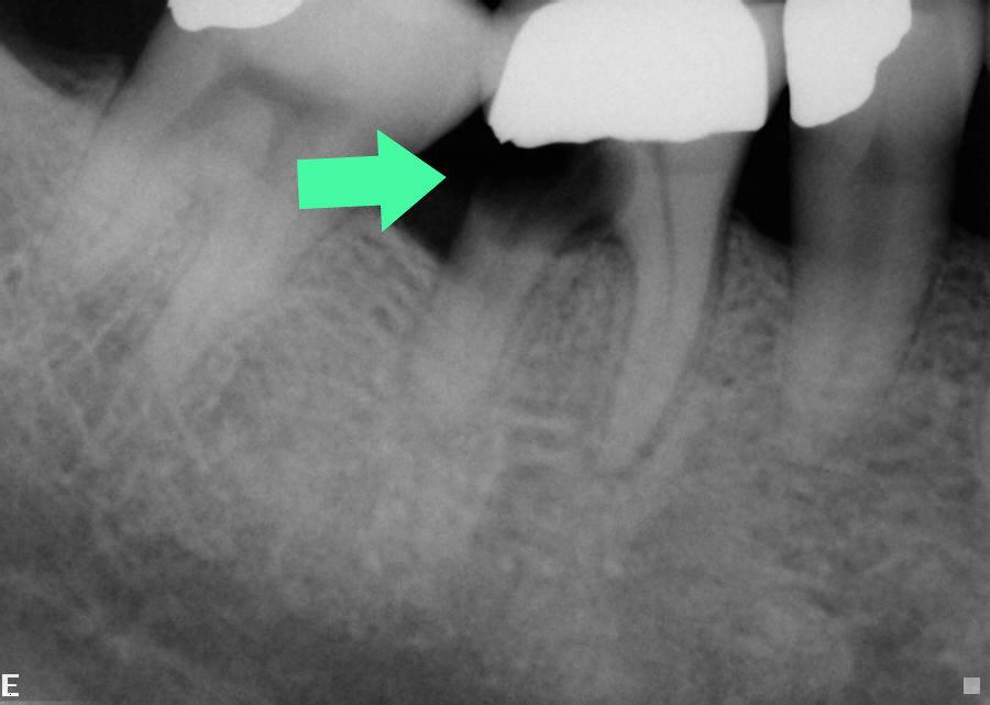 Dental Implant Missing Teeth Boston MA