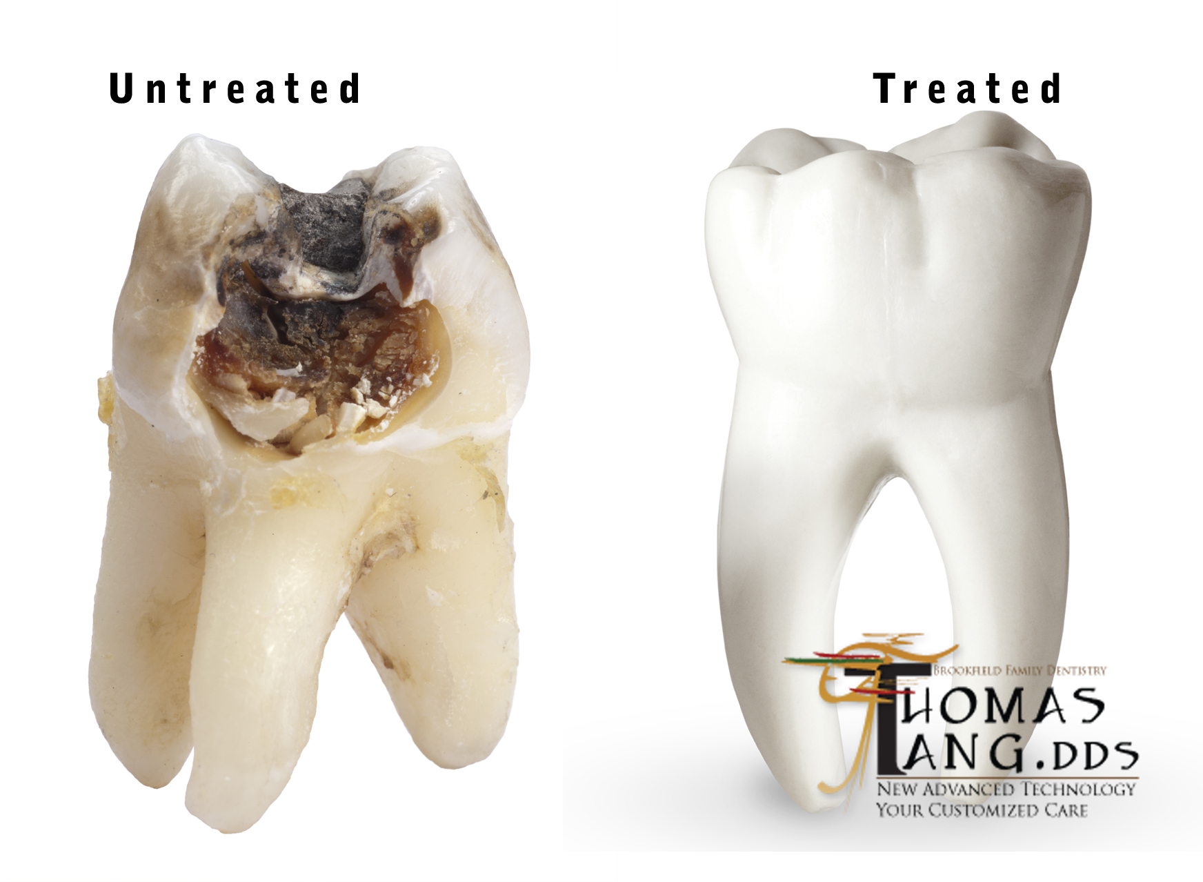 Brookfield Dentist - Milwaukee Dentist - Tooth infection - tooth pain