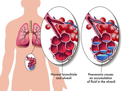 Salt Lake City Pneumonia Litigation