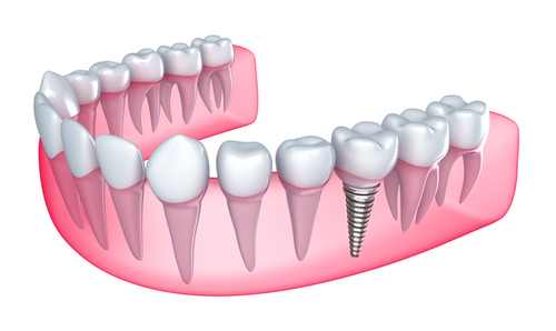 dentalimplants Livingston Dentists: What are Dental Implants?