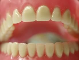Ridgewood Dentures