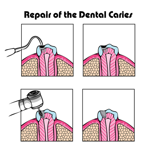 Jackson Cavities Treatment