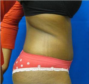 tummy tuck hysterectomy bridgeport norwalk fairfield connecticut jandali plastic surgery