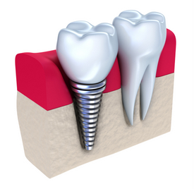 Big Spring Dental Implants Restoration