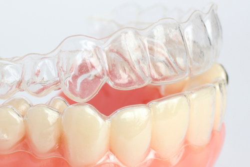 Chattanooga Invisalign® Treatment Timeline