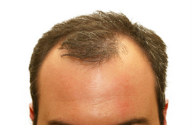 How young is too young for hair transplant surgery?