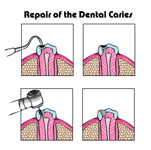Philadelphia Tooth Decay Treatment