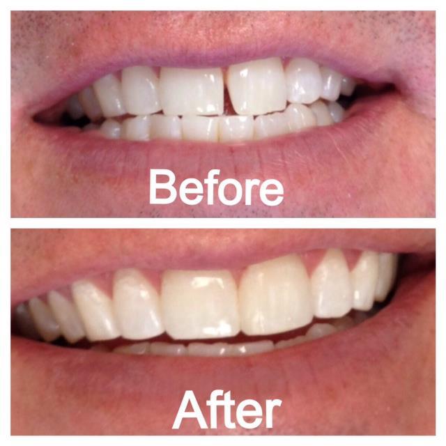 Cosmetic Composite Dental Bonding Kansas City
